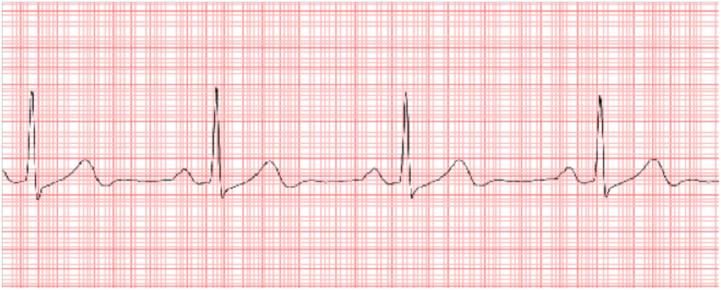 Herzkurve